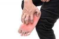 The Fungal Infection Known as Athlete's Foot