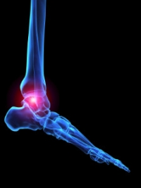 Types of Arthritis That May Affect the Feet