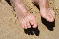 How Does Hammertoe Occur?